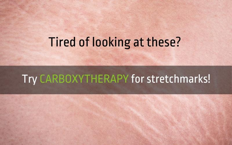 carboxytherapy skin101