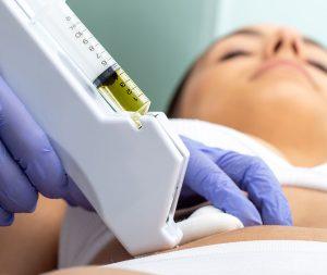 skin101 carboxytherapy