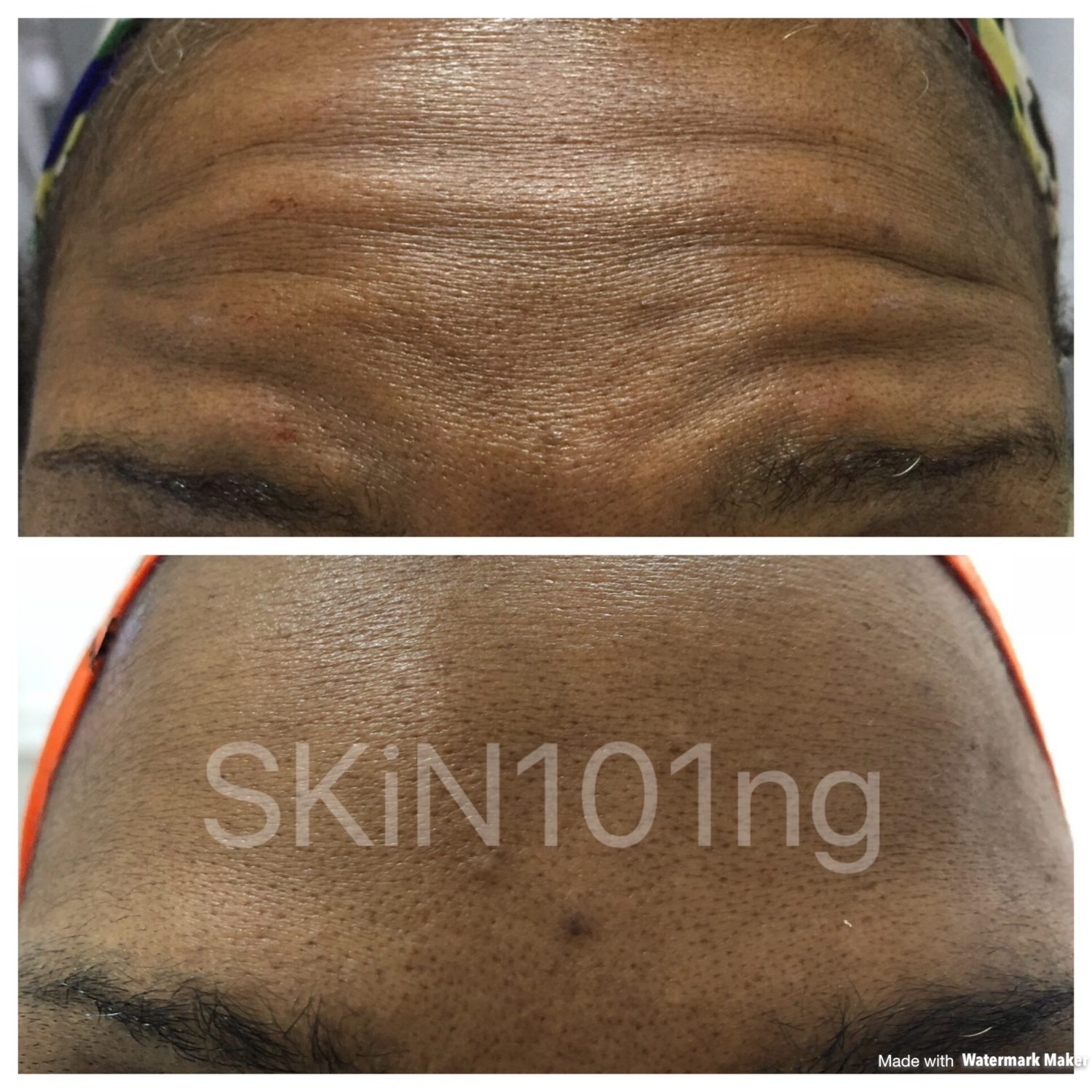 forehead botox treatment