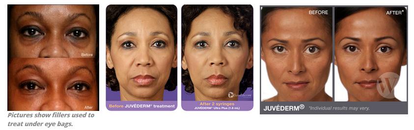 cosmetics fillers