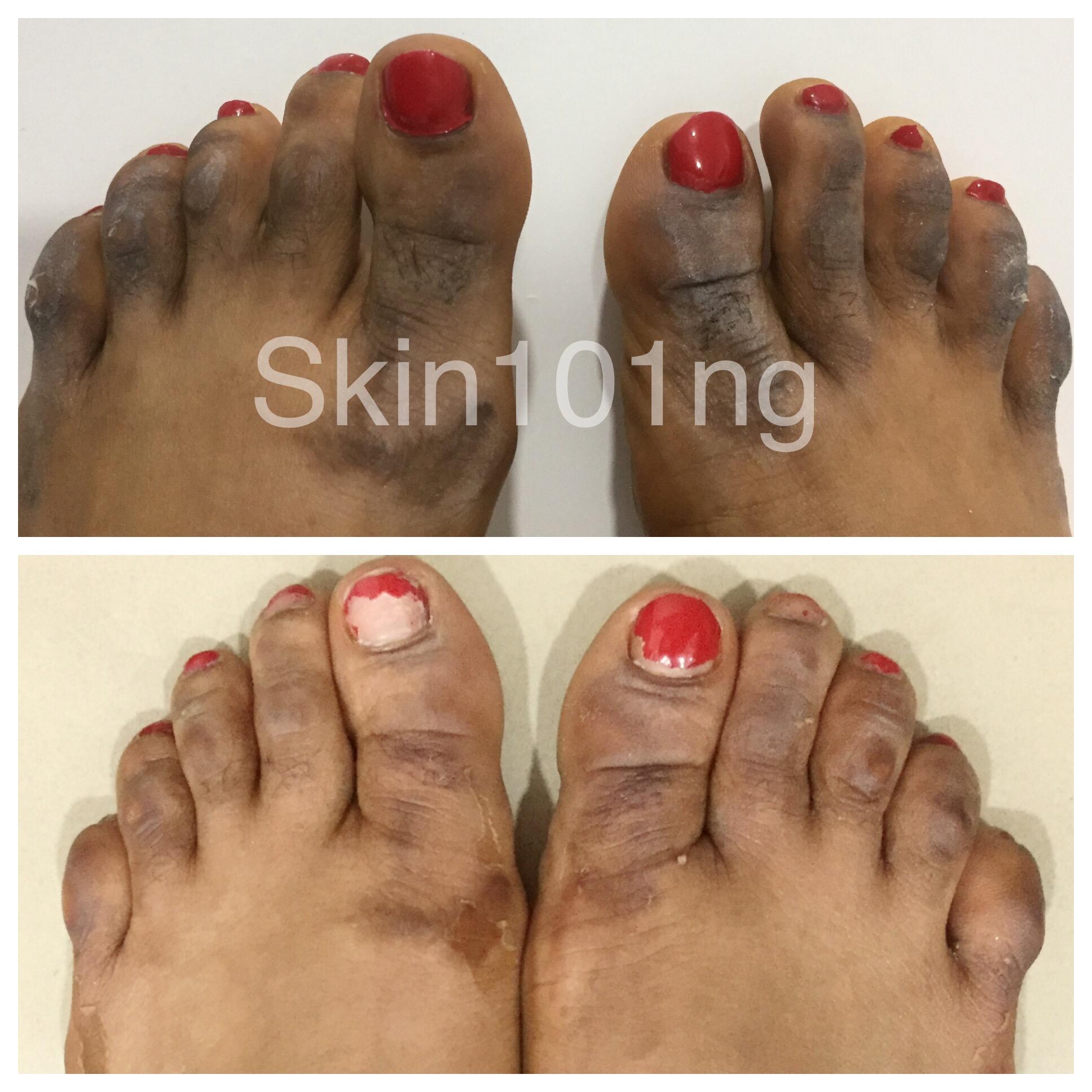 dark knuckes feet