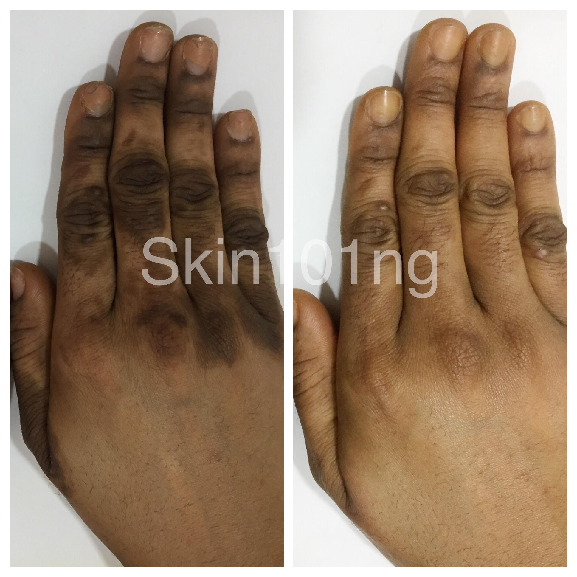 dark knuckles hands