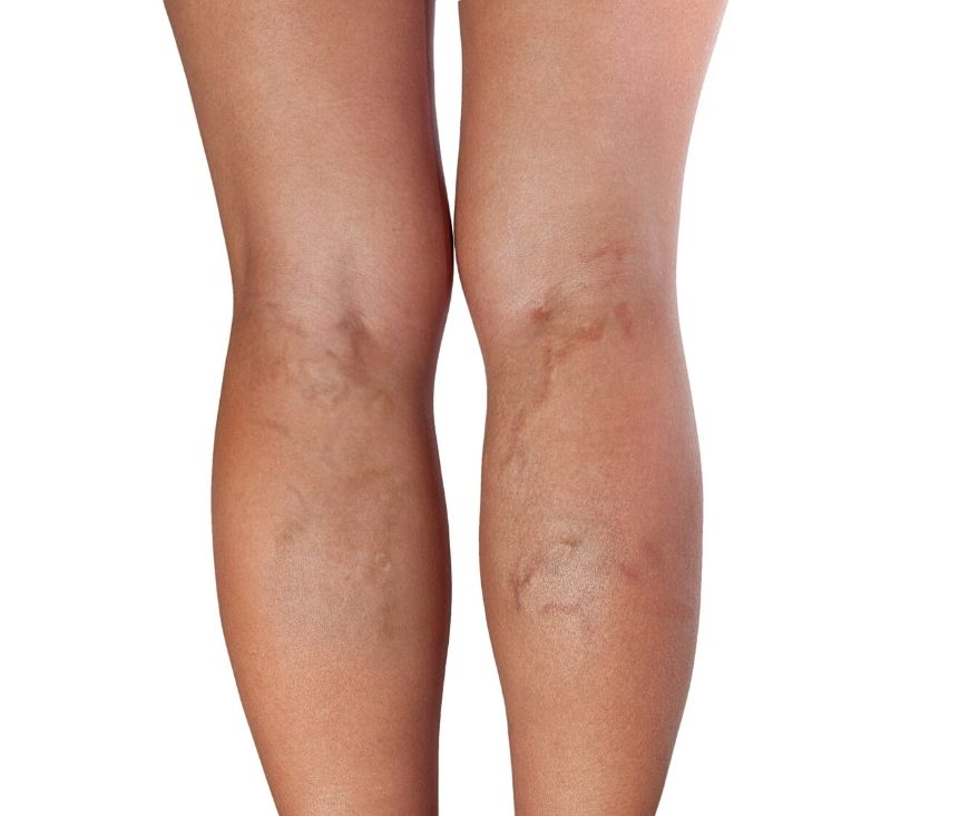 spider veins treatment in Abuja