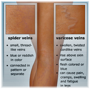 treatment of varicose veins in nigeria - sclerotherapy