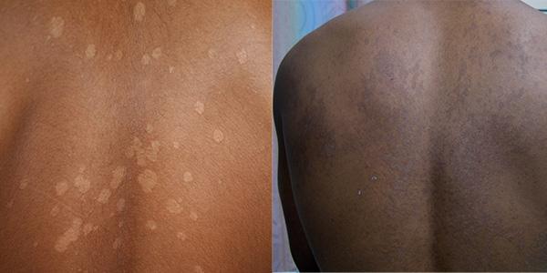 eczema vs pityriasis versicolor