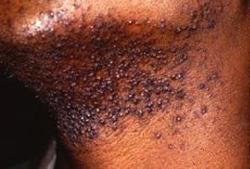 Figure 1. Pseudofolliculitis barbae(Photo credit:www.dermapedia.com)