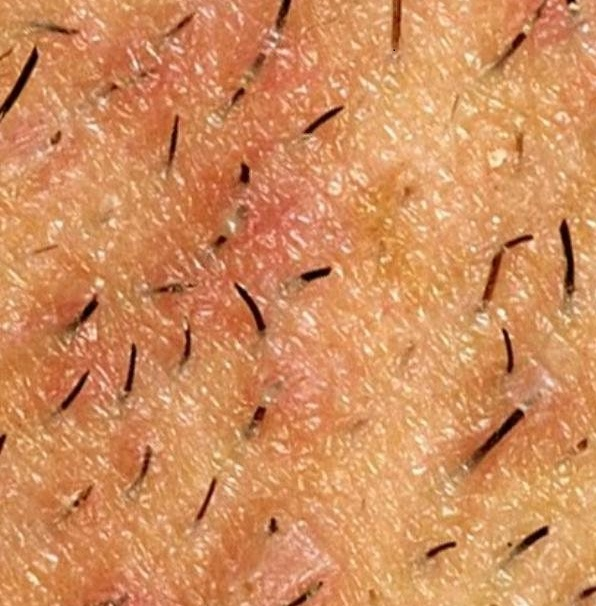 Figure 3. Showing many hair strands growing within and into the skin. Some of them are infected.