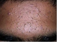 (Photo courtesy gidifab.com) Showing non-inflammed acne with several blackheads and fewer whiteheads.