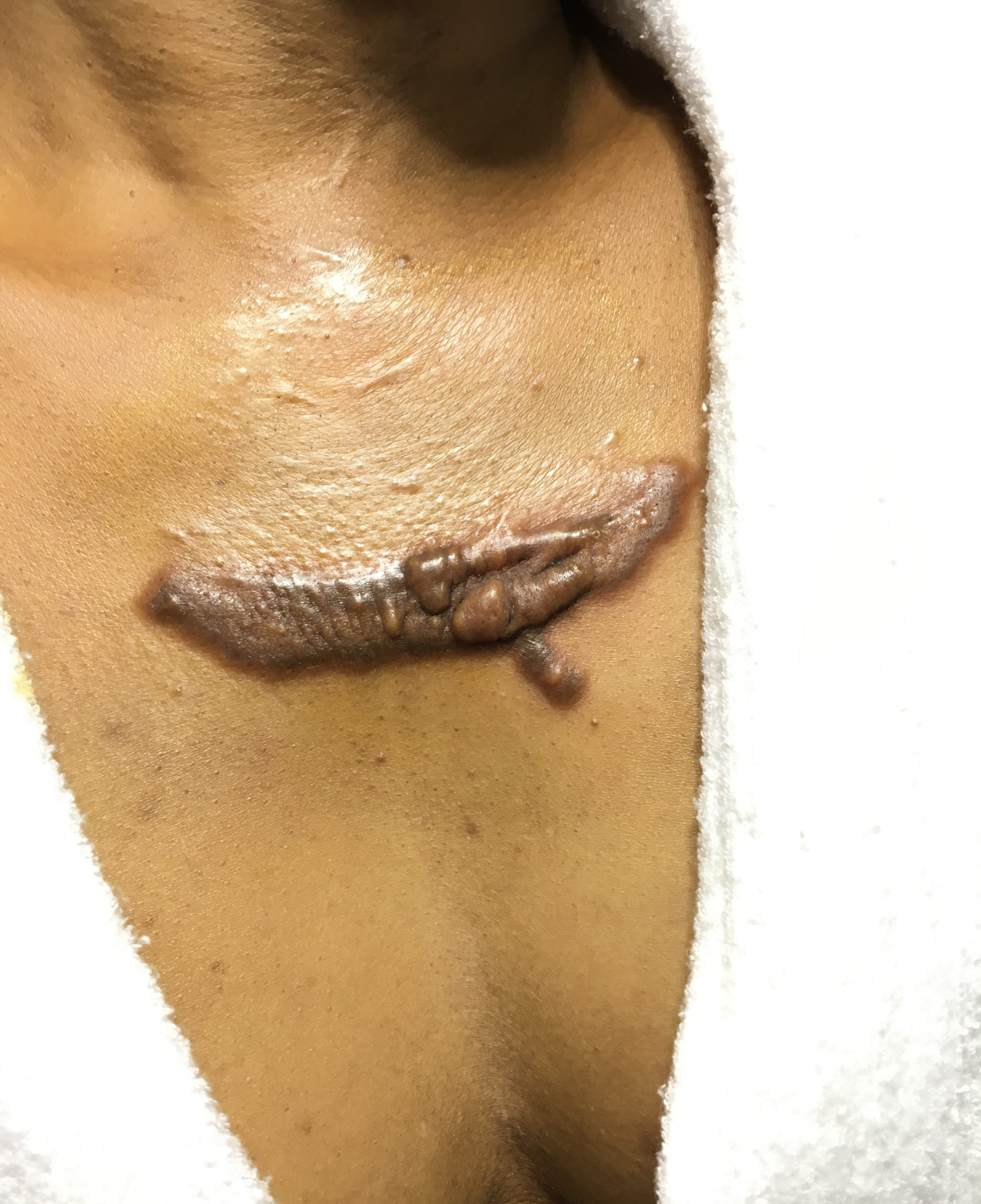 best keloid treatment in nigeria