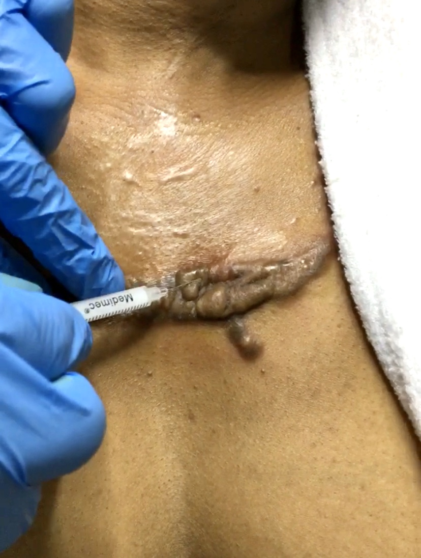 Intralesional steroid injection keloid treatment in nigeria