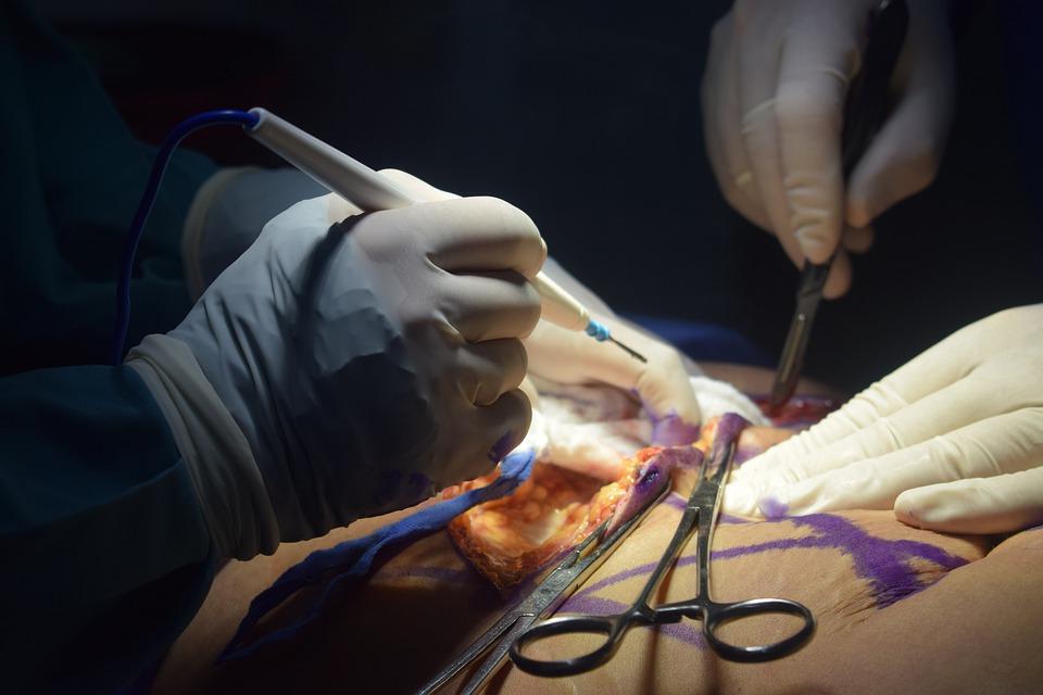 plastic surgery in abuja nigeria liposuction in abuja