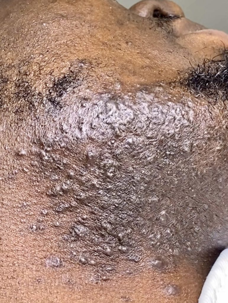 pseudofolliculitis barbae ingrown hair complication