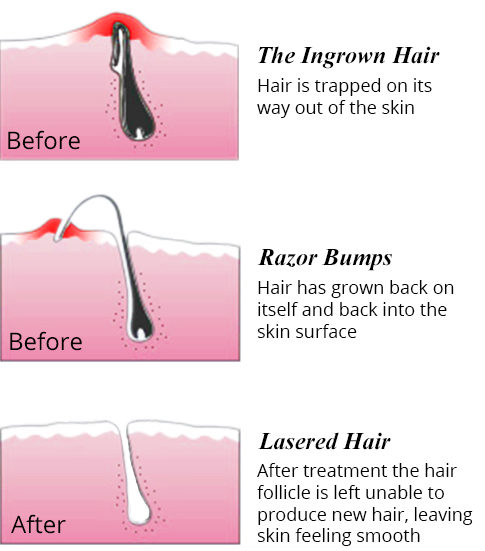 best ingrown hair treatment