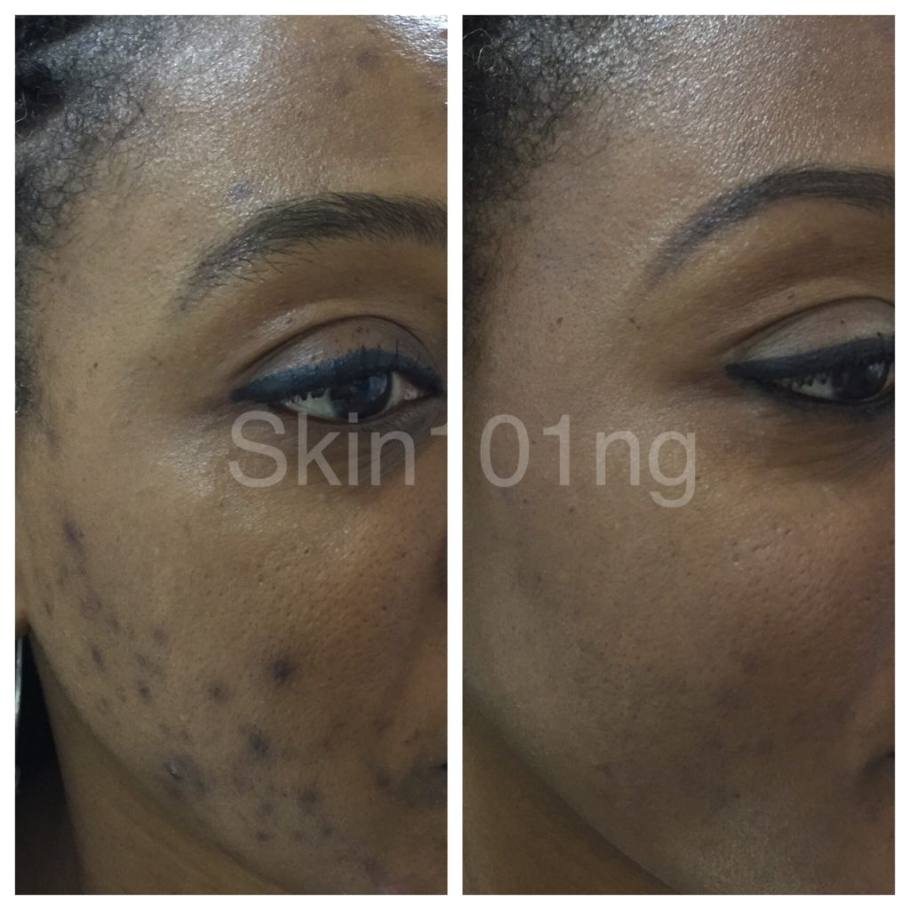 PIH Before and After Hyperpigmentation Treatment