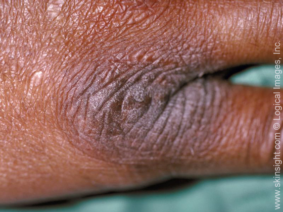 Lichen Simplex Chronicus type of Eczema