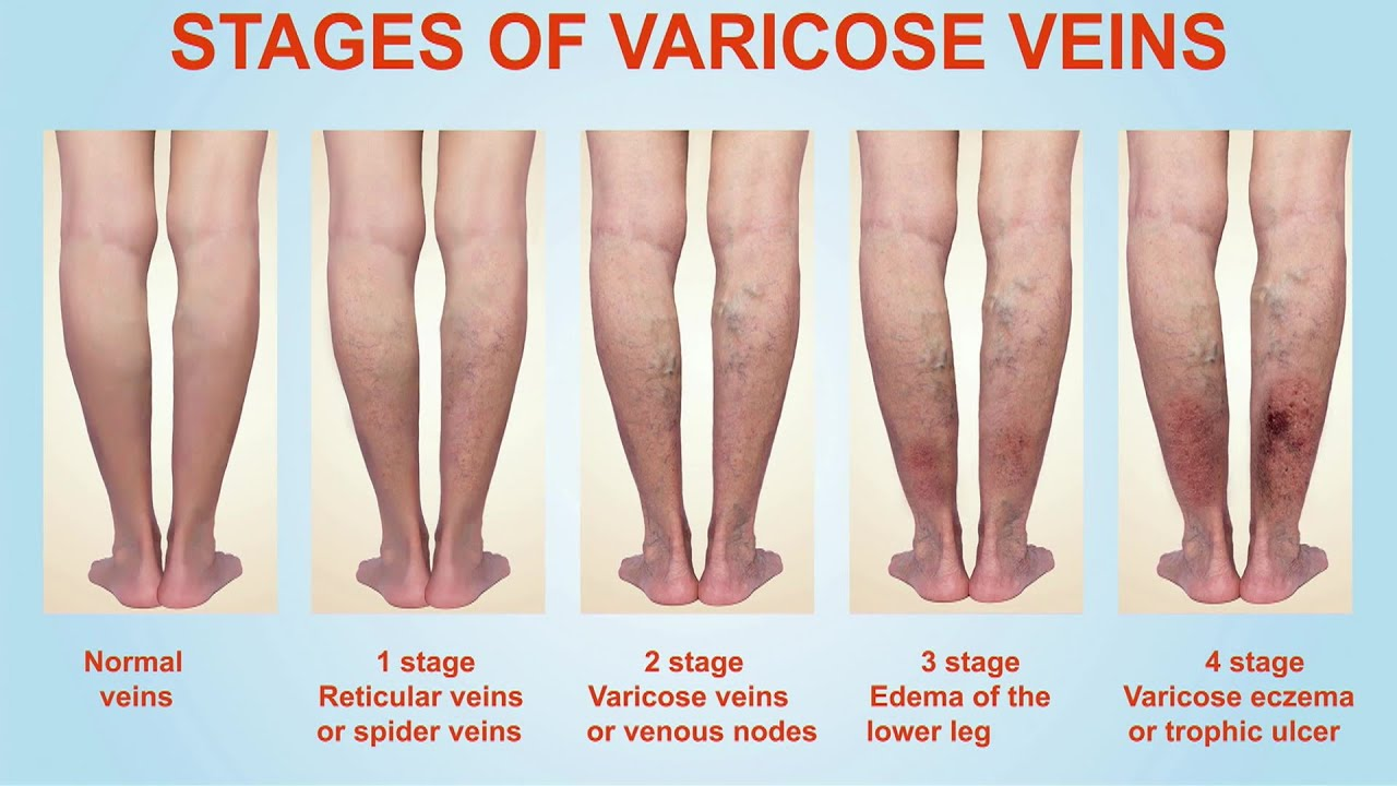 stages of varicose veins and treatment of varicose veins in Nigeria