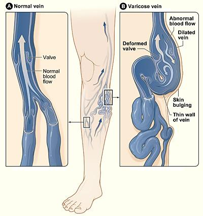 treatment of varicose veins in nigeria