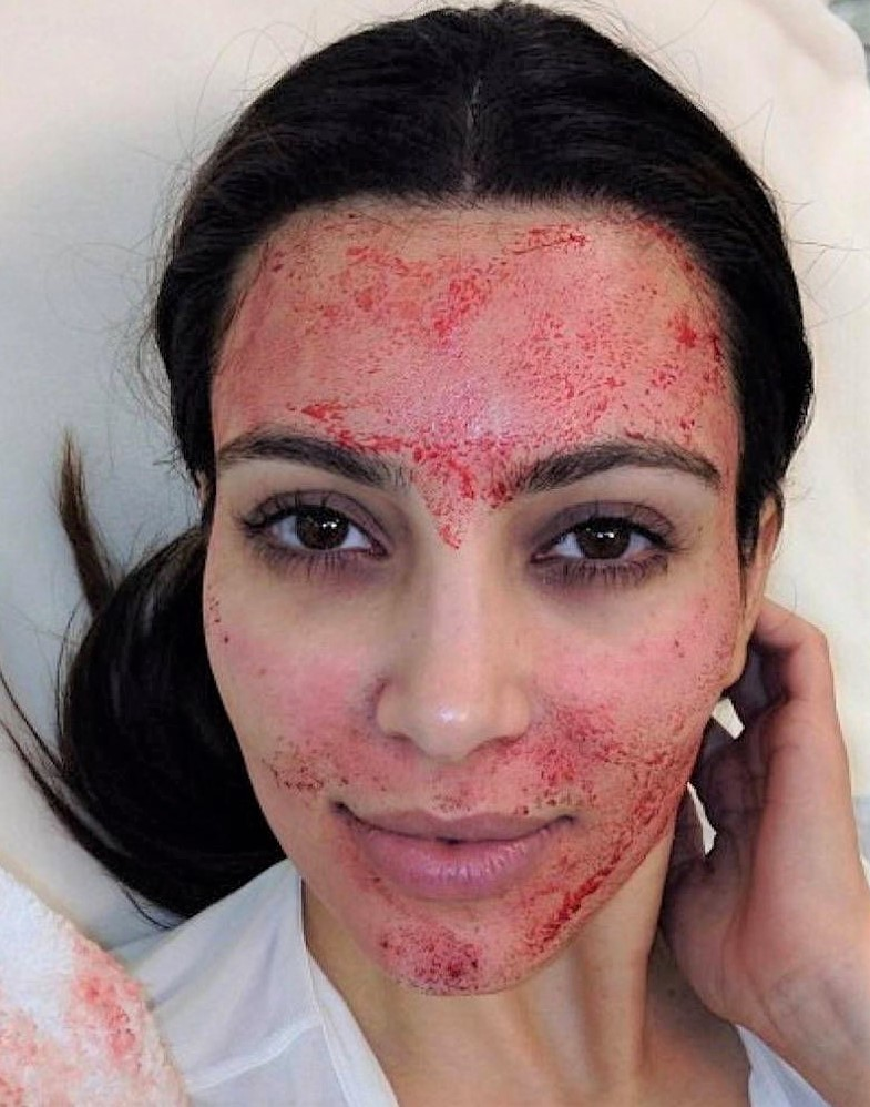 Vampire facial microneedling with PRP on kim kardashian