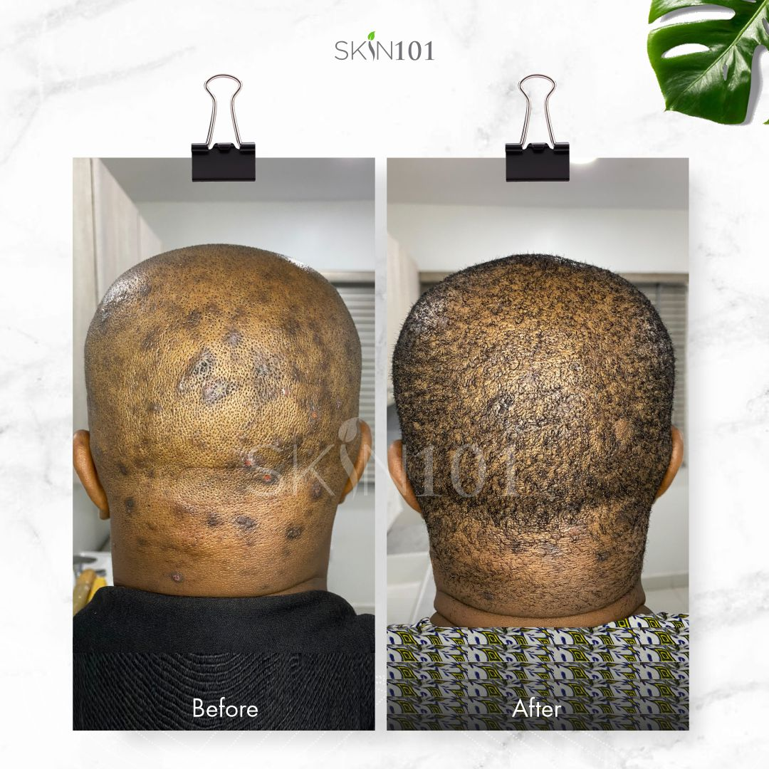 Scalp Folliculitis Before And After