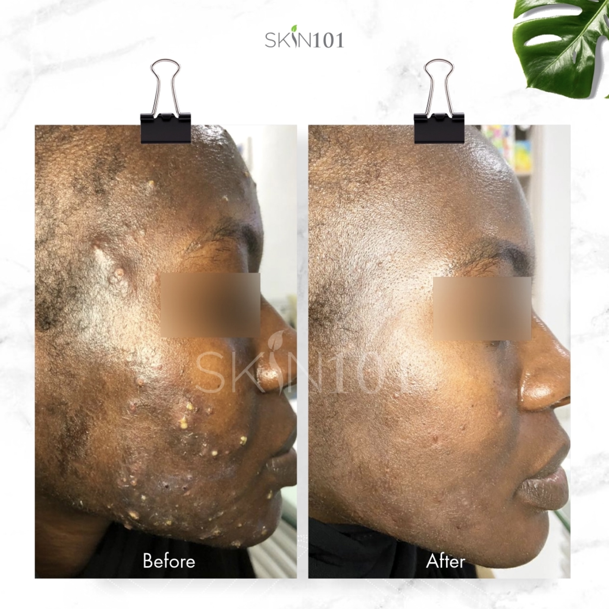 Severe Acne Treatment Before and After