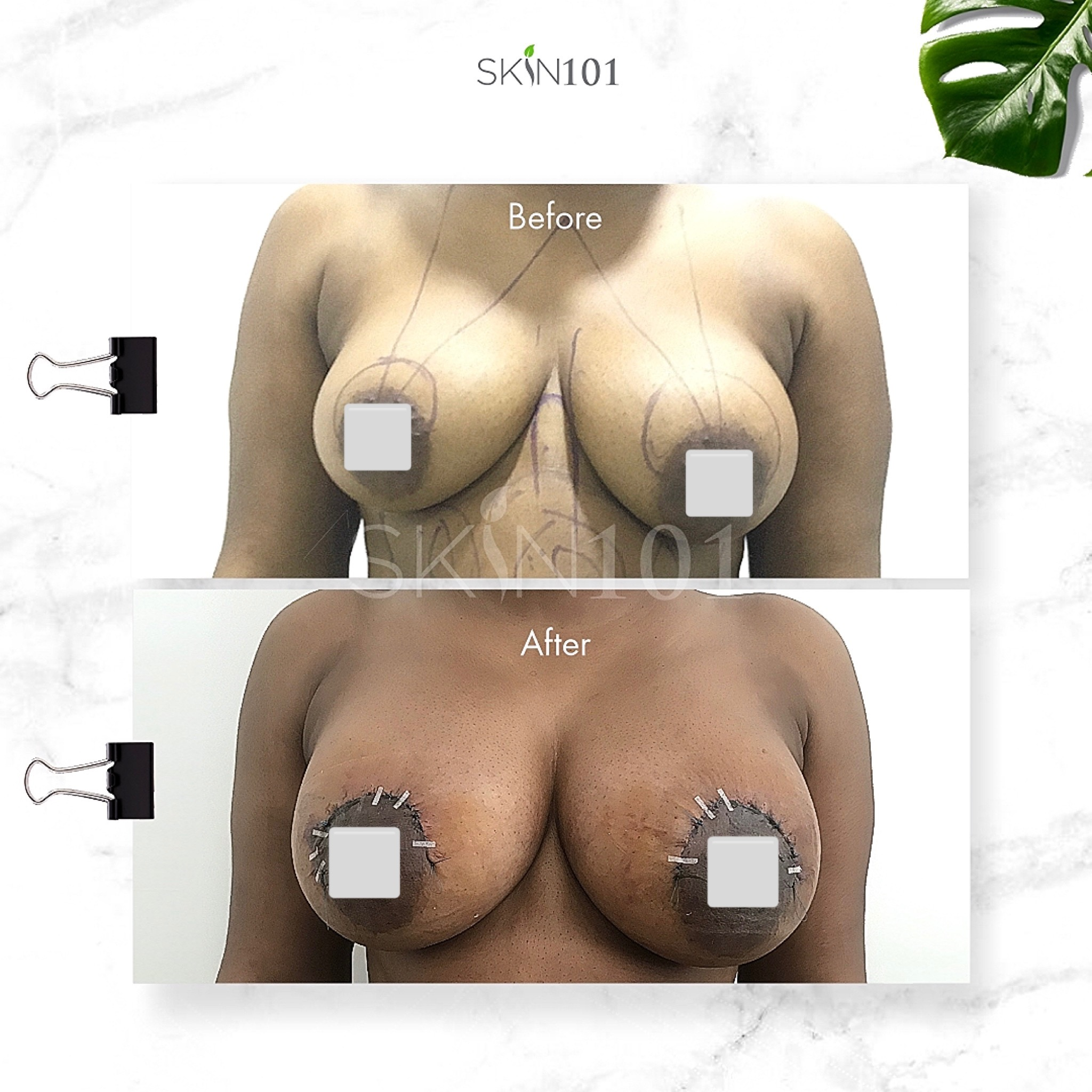 Where to do Breast augmentation with implants in Abuja Nigeria