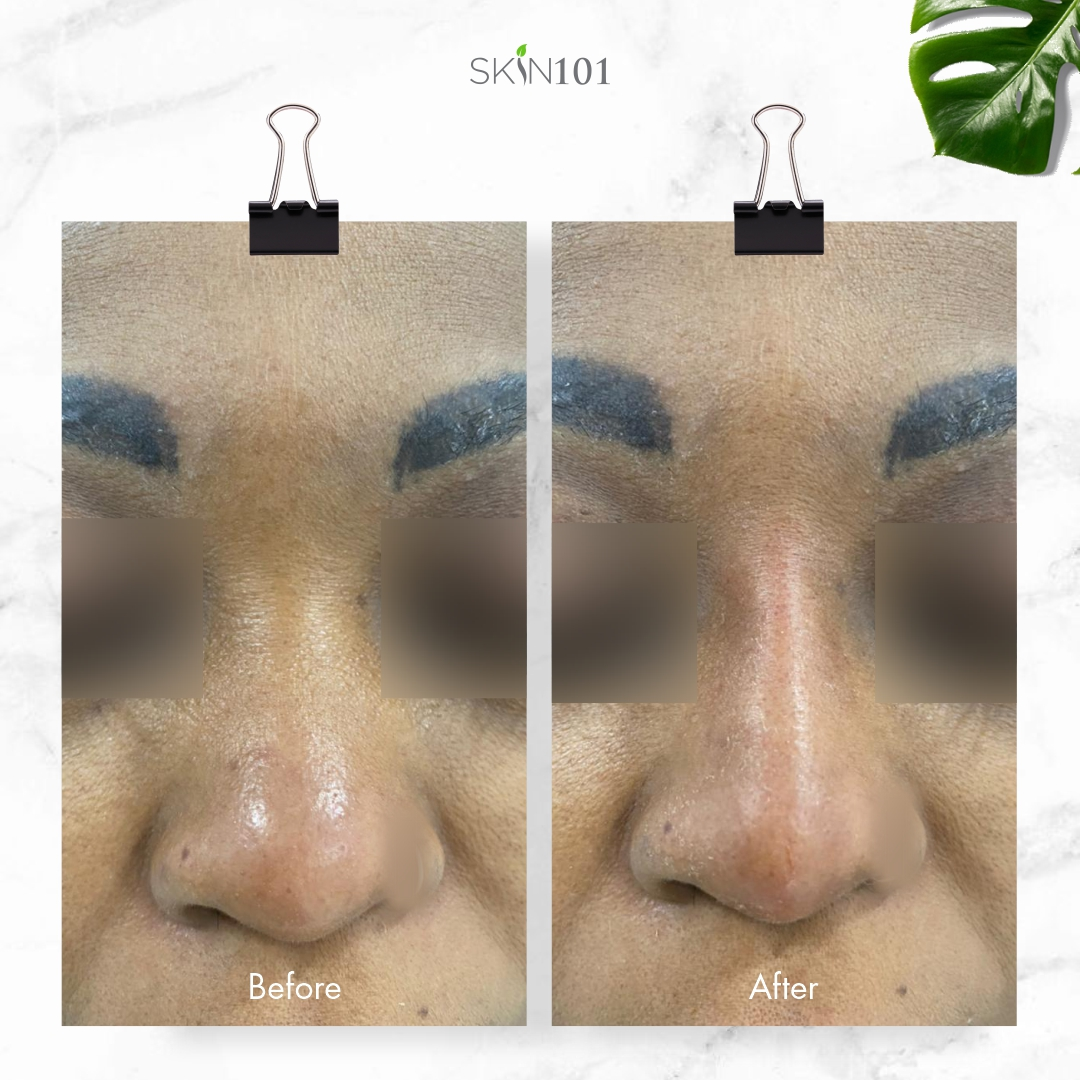 Liquid Rhinoplasty AKA Nose Fillers - Before And After