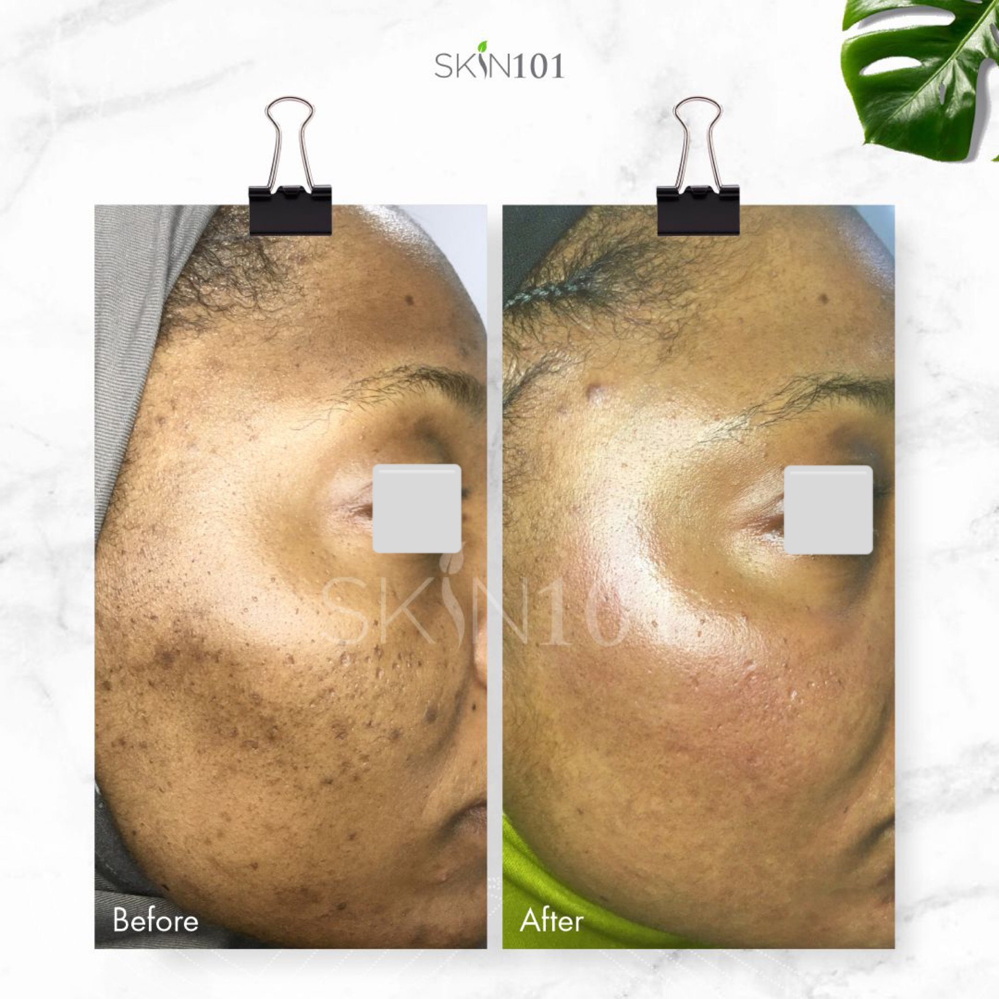 Post Inflammatory Hyperpigmentation PIH From Acne - Before And After