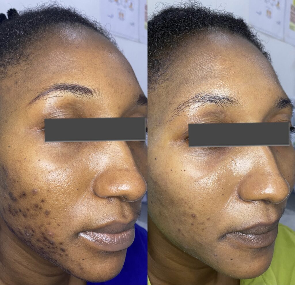 Newmelan peel for hyperpigmentation before and after