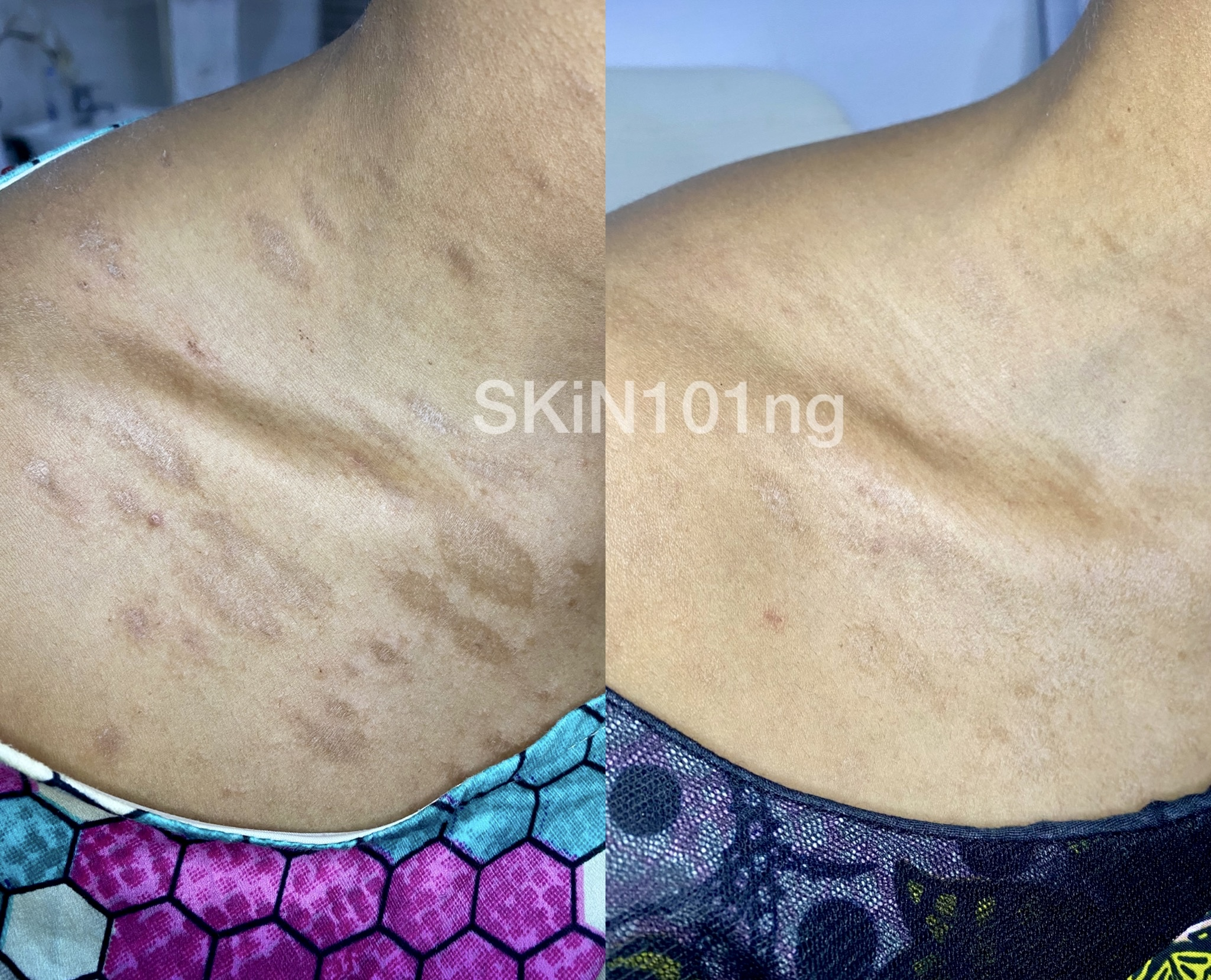 Pityriasis Rosea Before and After Two weeks of treatment