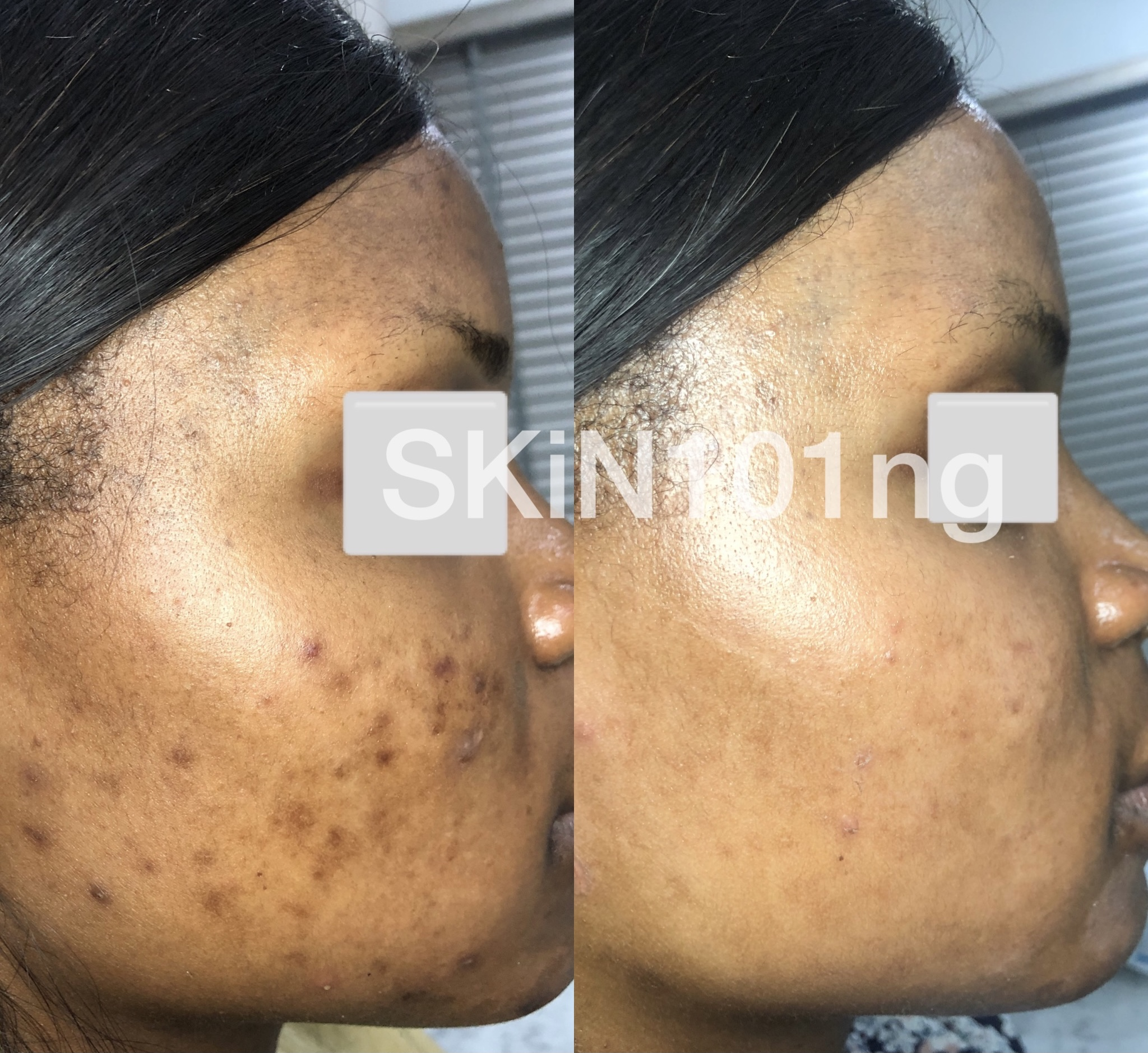 treatment of PIH from acne before and after abuja nigeria skin clinic