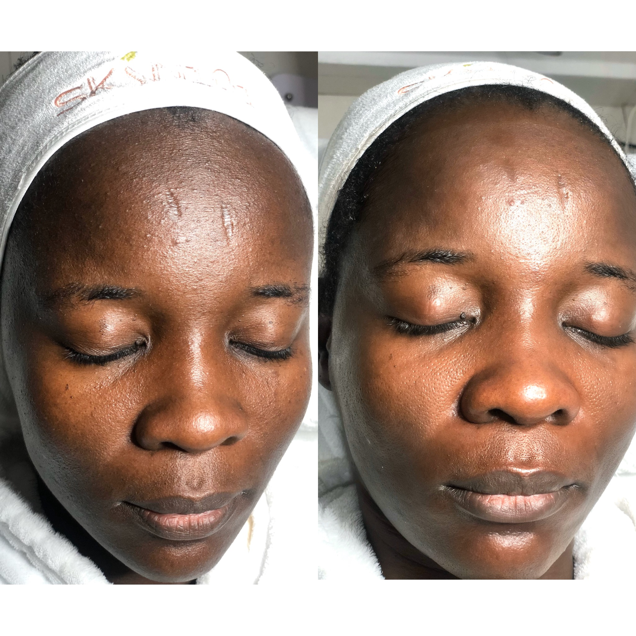 Before and after of luminous brightening facial